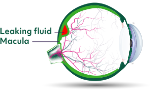 In the wet form of age-related macular degeneration, extra blood vessels form and leak blood and fluid in the back of the eye.